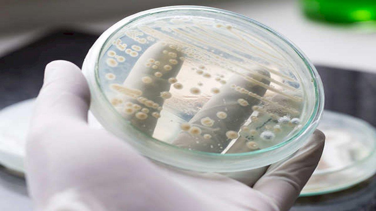 कोरोना महामारी के बीच सुपरबग 'कैंडिडा ऑरिस' भी बन सकता है बड़ा ख़तरा
